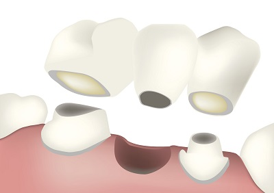 Diagram of a dental bridge from dentist office in Sussex, WI.