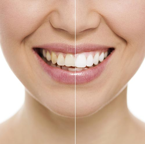 a smiling patient showing her teeth lightening from Sussex Dental